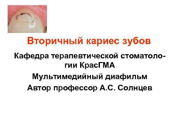 Вторичный кариес зубов Кафедра терапевтической стоматоло-  гии Крас. ГМА Мультимедийный диафильм