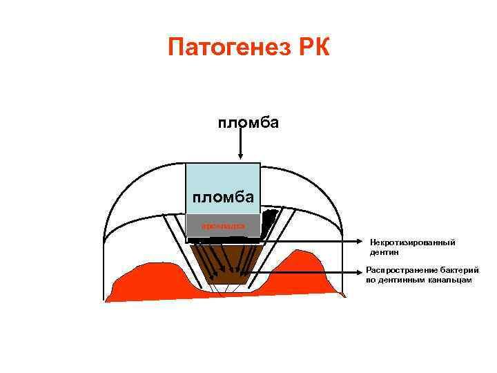 Патогенез РК  пломба  прокладка    Некротизированный    дентин