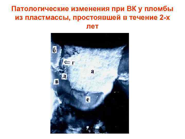 Патологические изменения при ВК у пломбы из пластмассы, простоявшей в течение 2 -х