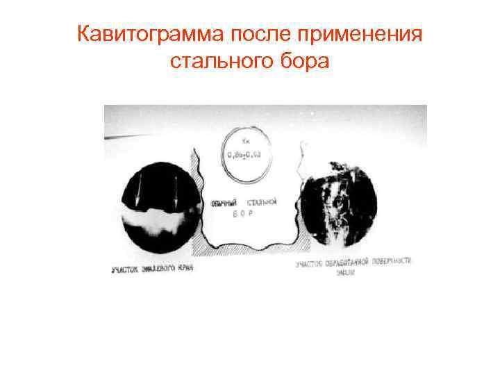 Кавитограмма после применения   стального бора