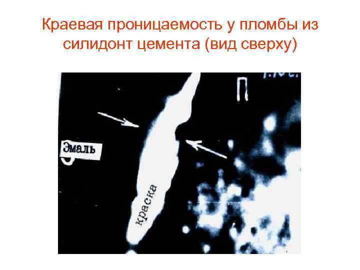 Краевая проницаемость у пломбы из  силидонт цемента (вид сверху)