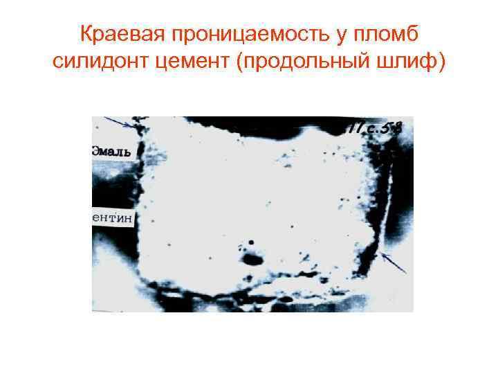 Краевая проницаемость у пломб силидонт цемент (продольный шлиф)