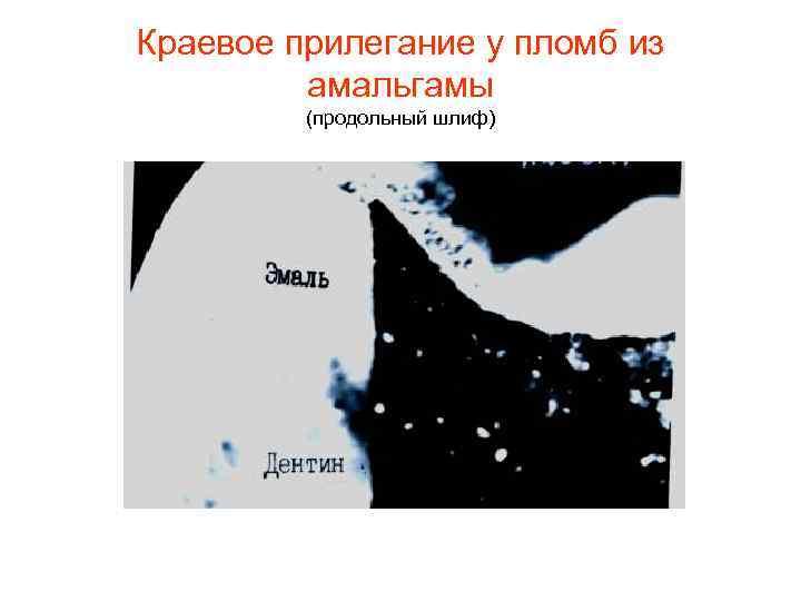 Краевое прилегание у пломб из   амальгамы   (продольный шлиф)