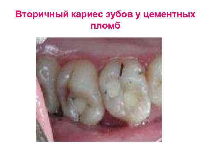 Вторичный кариес зубов у цементных    пломб