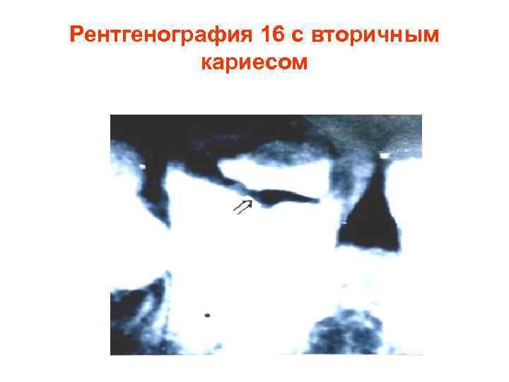 Рентгенография 16 с вторичным  кариесом
