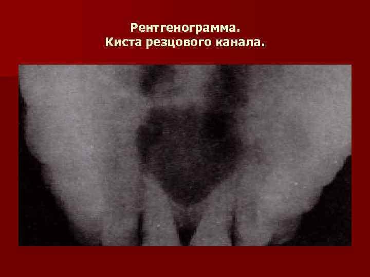Рентгенограмма. Киста резцового канала.