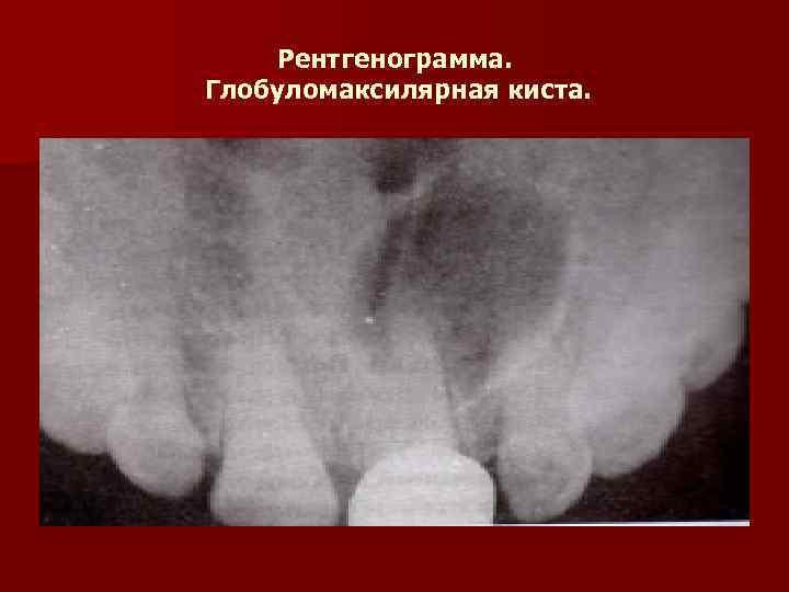Рентгенограмма. Глобуломаксилярная киста.