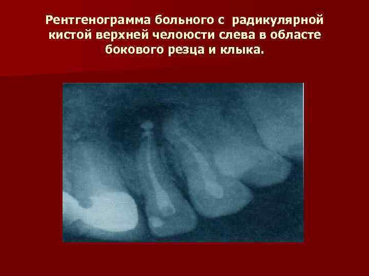 Рентгенограмма больного с радикулярной кистой верхней челоюсти слева в областе   бокового резца