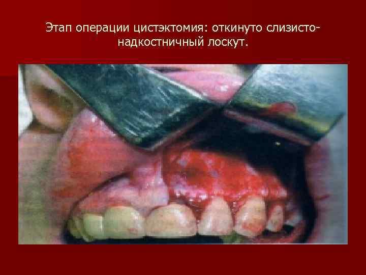 Этап операции цистэктомия: откинуто слизисто-  надкостничный лоскут.