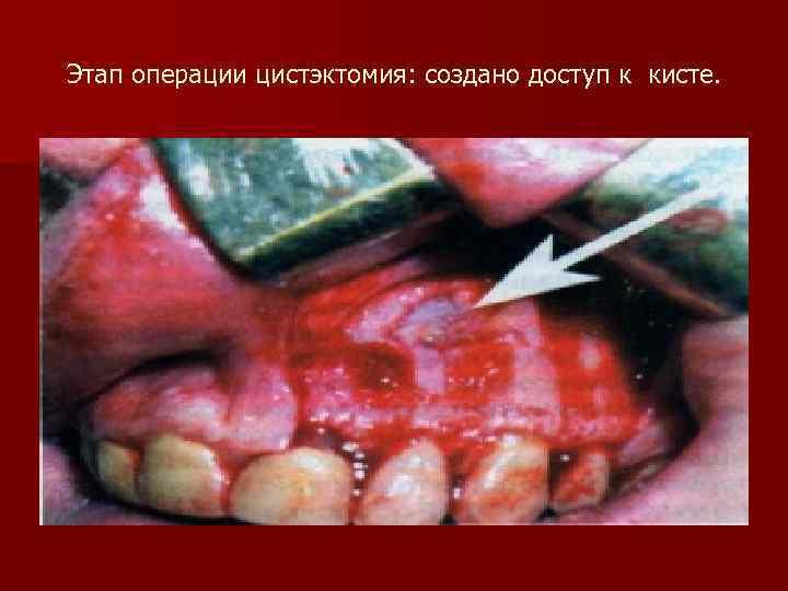 Этап операции цистэктомия: создано доступ к кисте.