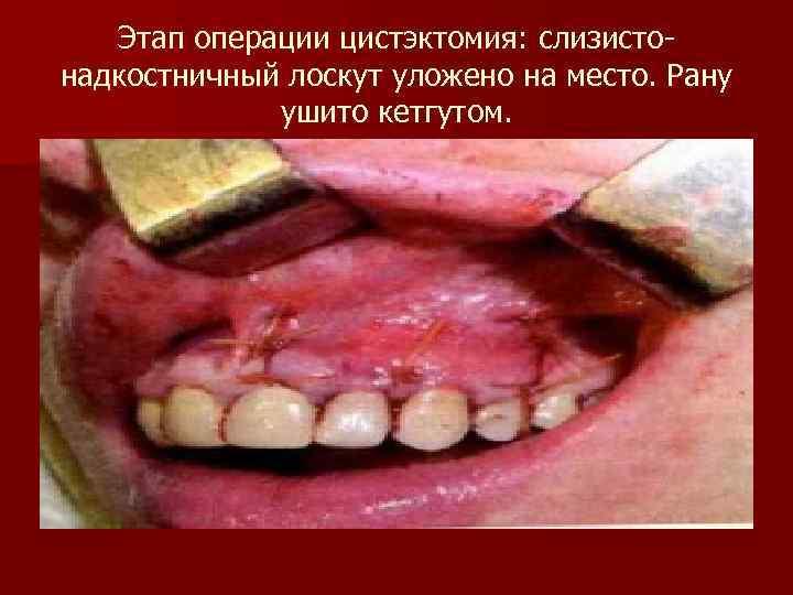 Этап операции цистэктомия: слизисто- надкостничный лоскут уложено на место. Рану
