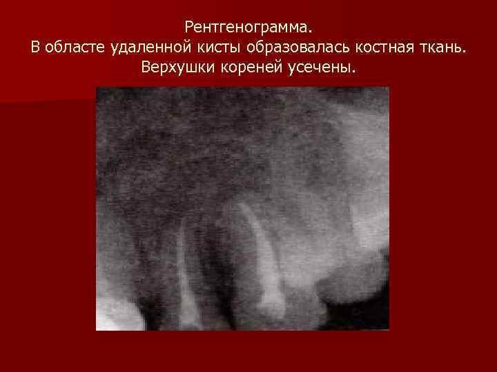 Рентгенограмма. В областе удаленной кисты образовалась костная ткань.