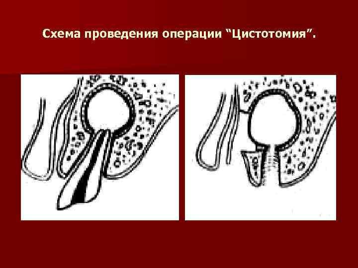 """Схема проведения операции """"Цистотомия""""."""