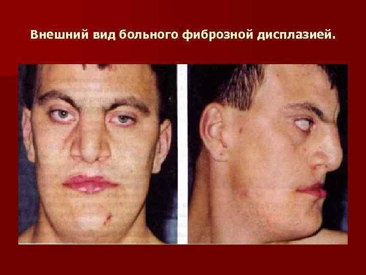 Внешний вид больного фиброзной дисплазией.