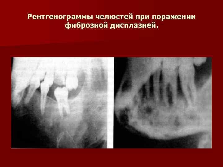 Рентгенограммы челюстей при поражении   фиброзной дисплазией.