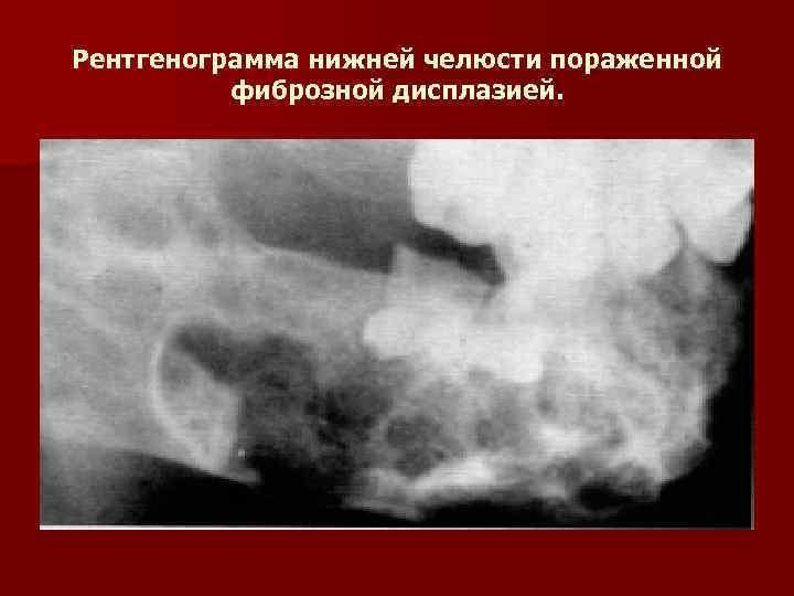 Рентгенограмма нижней челюсти пораженной  фиброзной дисплазией.