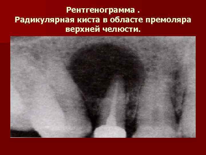 Рентгенограмма. Радикулярная киста в областе премоляра  верхней челюсти.