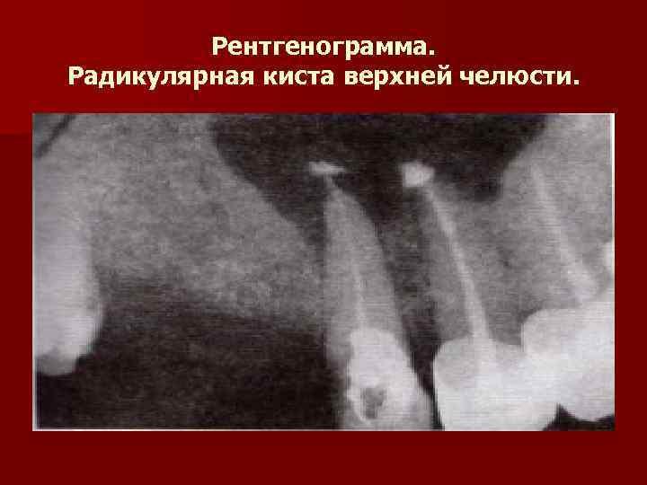 Рентгенограмма. Радикулярная киста верхней челюсти.