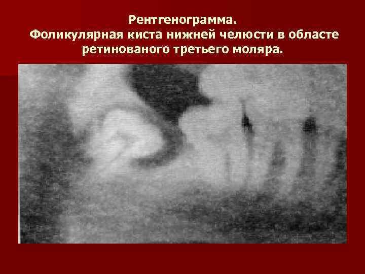 Рентгенограмма. Фоликулярная киста нижней челюсти в областе  ретинованого третьего моляра.