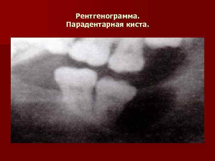 Рентгенограмма. Парадентарная киста.