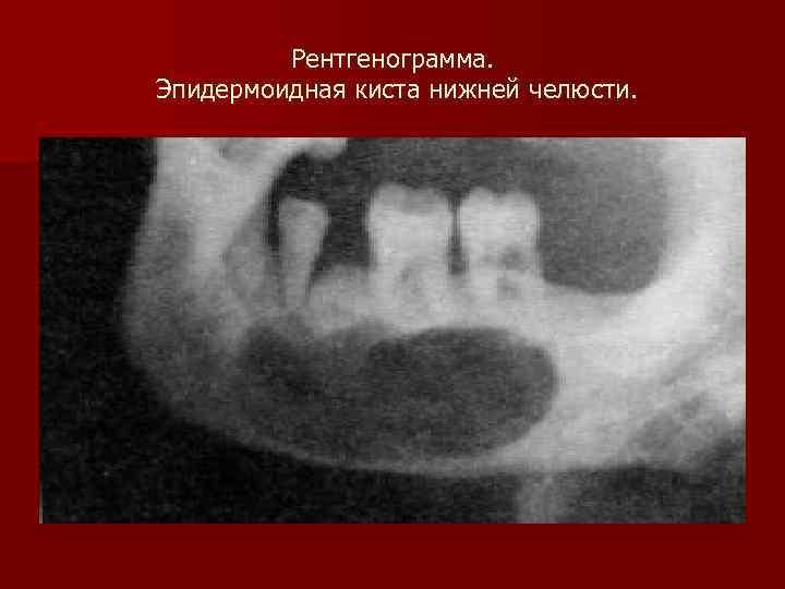 Рентгенограмма. Эпидермоидная киста нижней челюсти.
