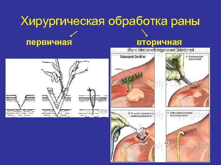Хирургическая обработка раны первичная   вторичная