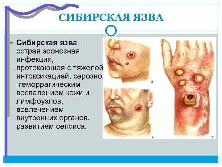 СИБИРСКАЯ ЯЗВА  Сибирская язва – острая зоонозная инфекция,  протекающая с