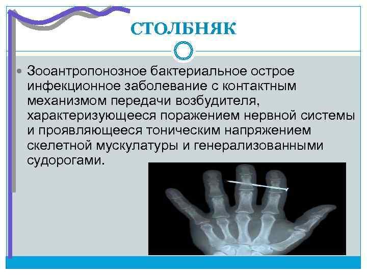 СТОЛБНЯК  Зооантропонозное бактериальное острое инфекционное заболевание с контактным механизмом