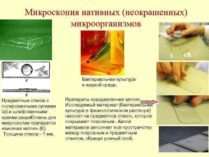 Микроскопия нативных (неокрашенных)    микроорганизмов