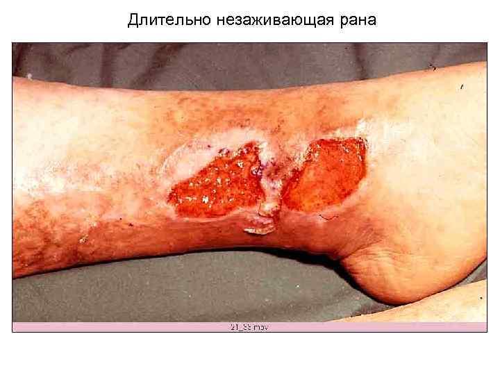 Длительно незаживающая рана