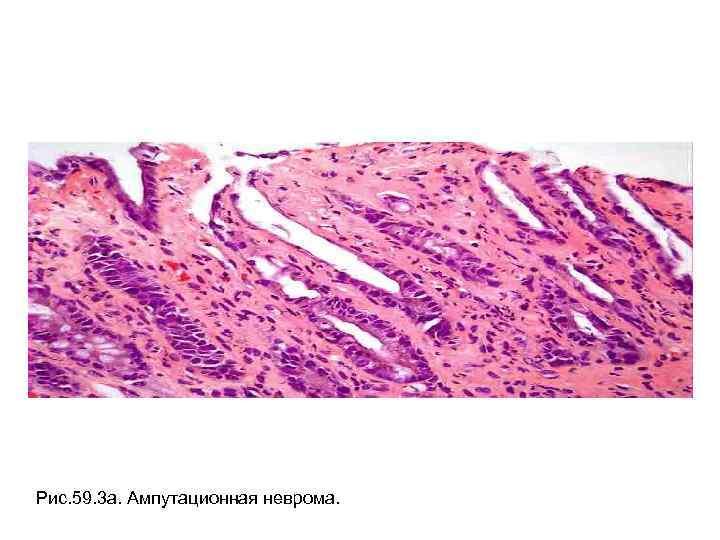 Рис. 59. 3 а. Ампутационная неврома.