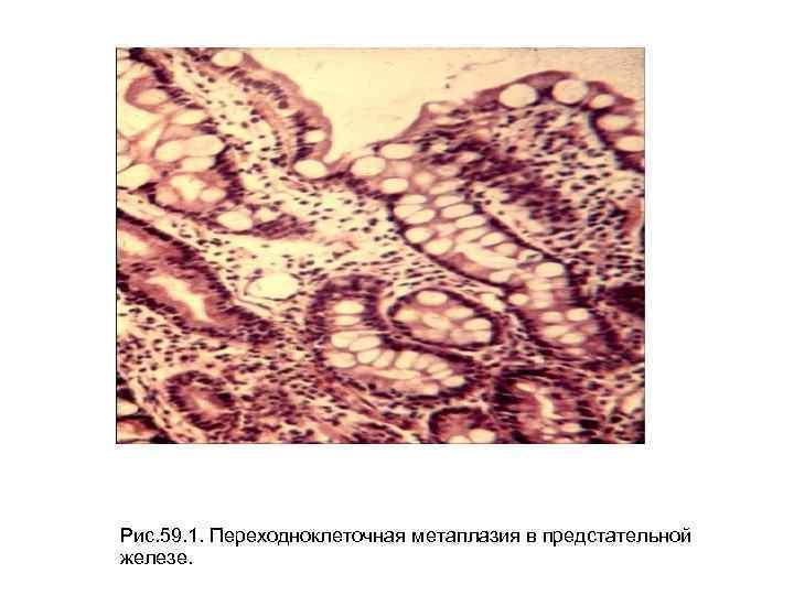 Рис. 59. 1. Переходноклеточная метаплазия в предстательной железе.