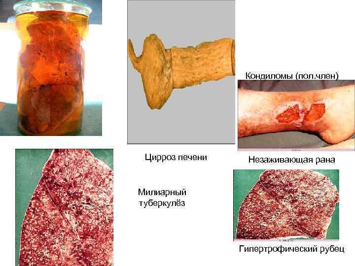 Кондиломы (пол. член) Цирроз печени  Незаживающая рана  Милиарный туберкулёз
