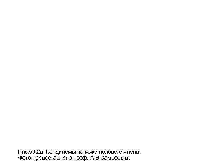 Рис. 59. 2 а. Кондиломы на коже полового члена. Фото предоставлено проф. А. В.