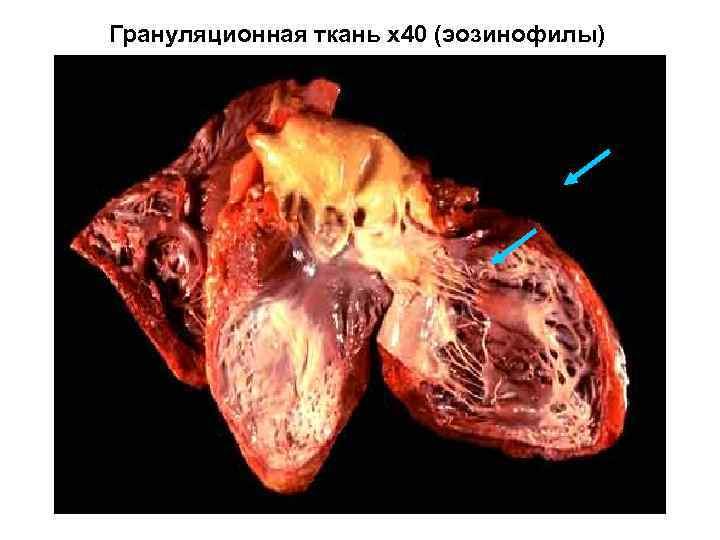 Грануляционная ткань х40 (эозинофилы)