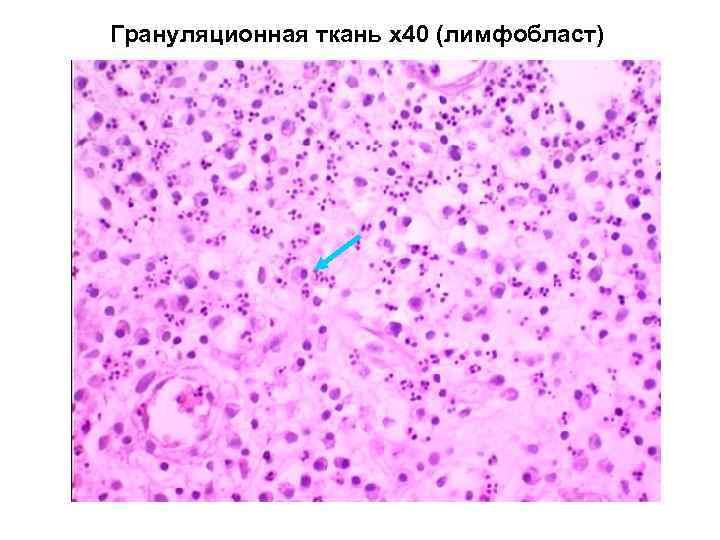 Грануляционная ткань х40 (лимфобласт)