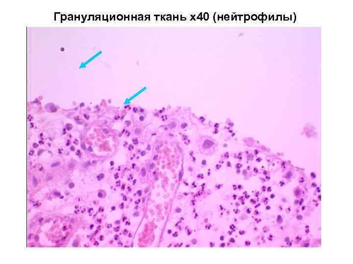 Грануляционная ткань х40 (нейтрофилы)