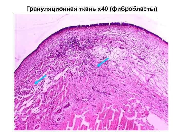 Грануляционная ткань х40 (фибробласты)