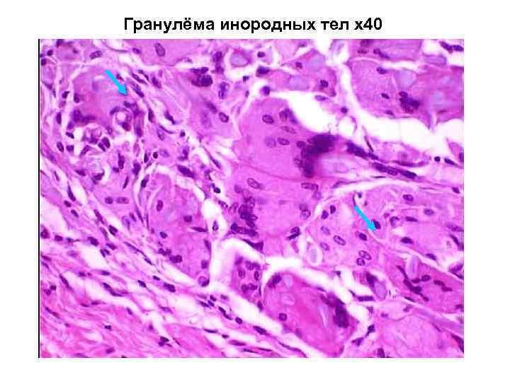 Гранулёма инородных тел х40