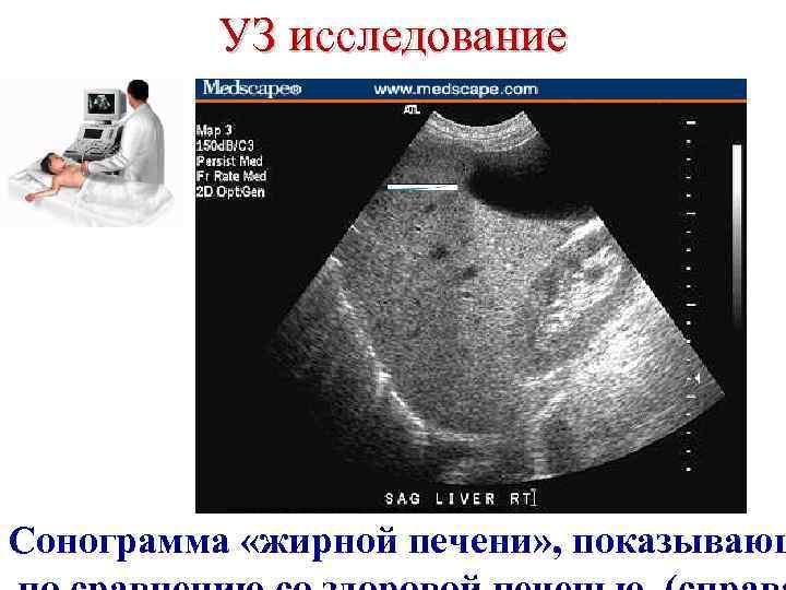 УЗ исследование «Gastroenterology expert association» , Medscape General Medicine 5(2), 2003 Сонограмма «жирной печени»