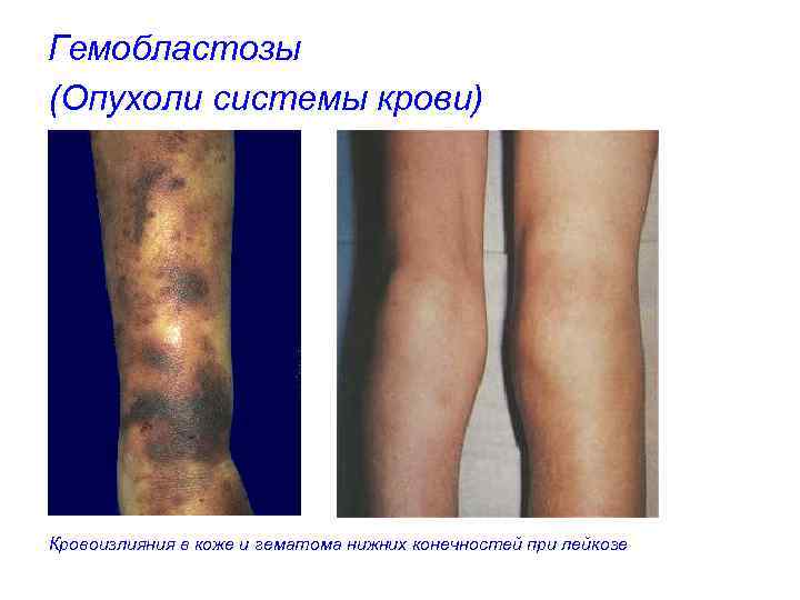 Гемобластозы (Опухоли системы крови) Кровоизлияния в коже и гематома нижних конечностей при лейкозе
