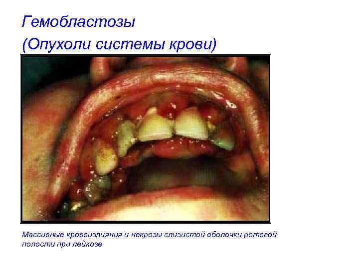 Гемобластозы (Опухоли системы крови) Массивные кровоизлияния и некрозы слизистой оболочки ротовой полости при лейкозе