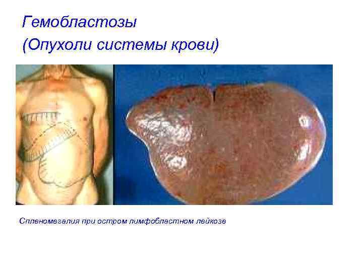 Гемобластозы (Опухоли системы крови) Спленомегалия при остром лимфобластном лейкозе