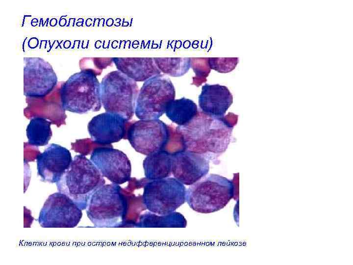 Гемобластозы (Опухоли системы крови) Клетки крови при остром недифференциированном лейкозе