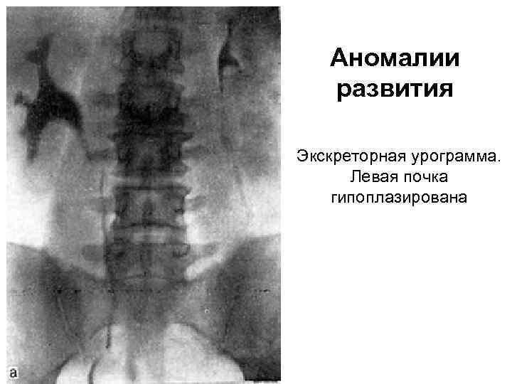 Аномалии развития Экскреторная урограмма. Левая почка гипоплазирована