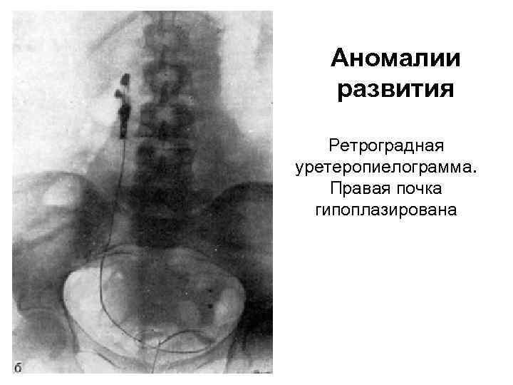 Аномалии развития Ретроградная уретеропиелограмма. Правая почка гипоплазирована