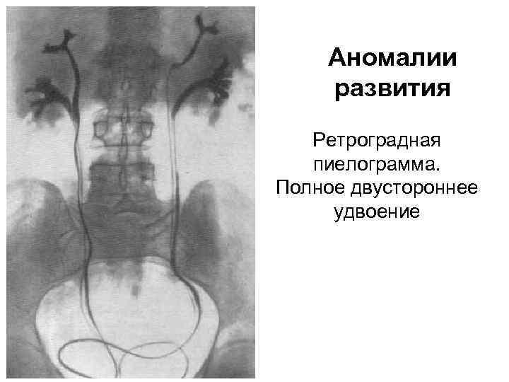 Аномалии развития Ретроградная пиелограмма. Полное двустороннее удвоение