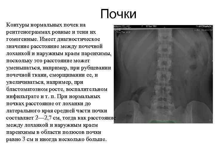 Почки Контуры нормальных почек на рентгенограммах ровные и тени их гомогенные. Имеет диагностическое значение