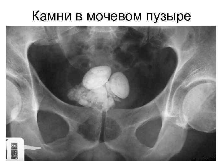 Камни в мочевом пузыре