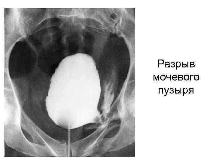 Разрыв мочевого пузыря